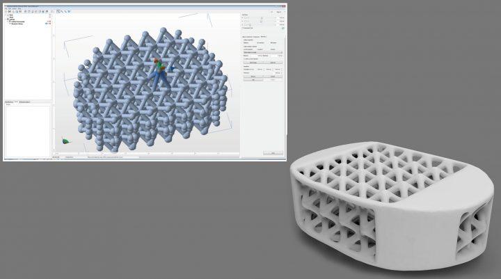 La fabricación aditiva al servicio de la industria médica: el caso de los implantes de magnesio de Meotec GmbH